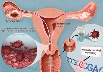 Science Translational Medicine A Pap Smear For Ovarian Cancer American Association For The Advancement Of Science